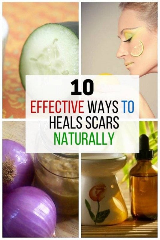 Heal those scars naturally with these organic ingredients. Getting rid of them should not be expensive, and it can be done safely and naturally.